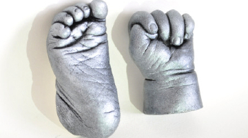 3D Hand And Foot Cast - Essex - Surrey - Greater London